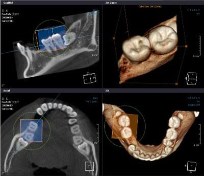 КТ снимки в стоматологии